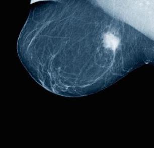 Breast tumour on a mammogram