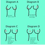 Unfortunately, despite being two and a half years past diagnosis, I am still stuck at Diagram B.